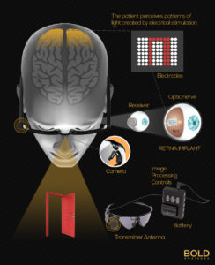 Infographic that explains bionic eye insertion into human