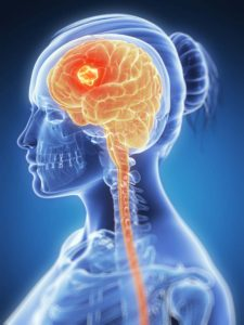 See through image of woman showing brain and a tour.