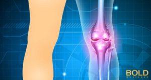 x ray view of knee bones