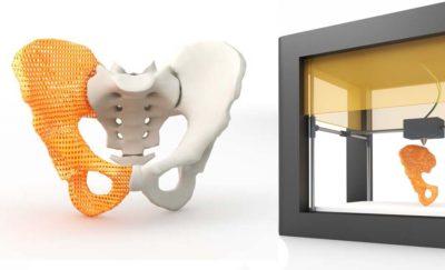 3d Printing Hip