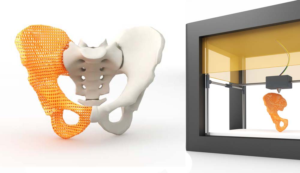 Printed Hip Bond and 3D Printer, Must be Protected from the Cybersecurity Risks of 3d Printing.
