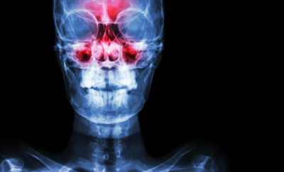 a photo of a futuristic x-ray showing a human head's sinuses in red amid the question: