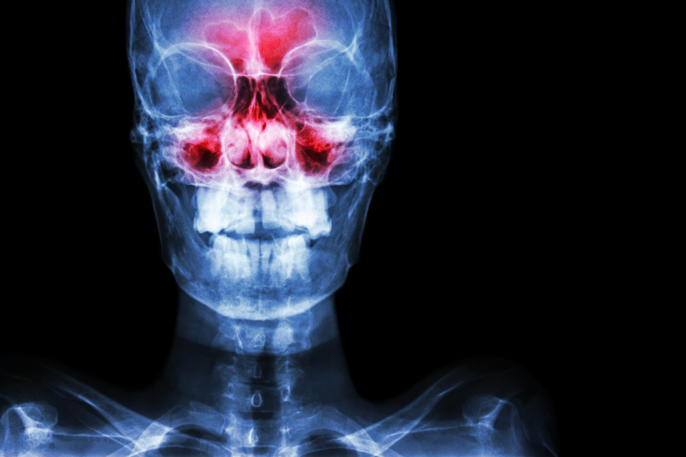 Futuristic Xray, with sinuses in red.