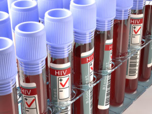 Positive blood vials of HIV infection