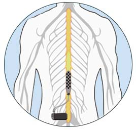 Epidural Stimulator Illustration