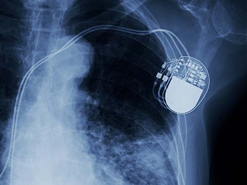 X ray in chest shows pacemaker