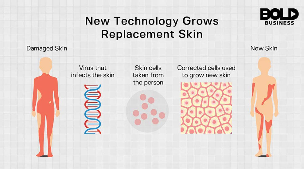 Graphic of DNA skin graft procedure.
