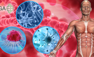 custom bold graphic of the human body and 3 illustrations of cancer cells