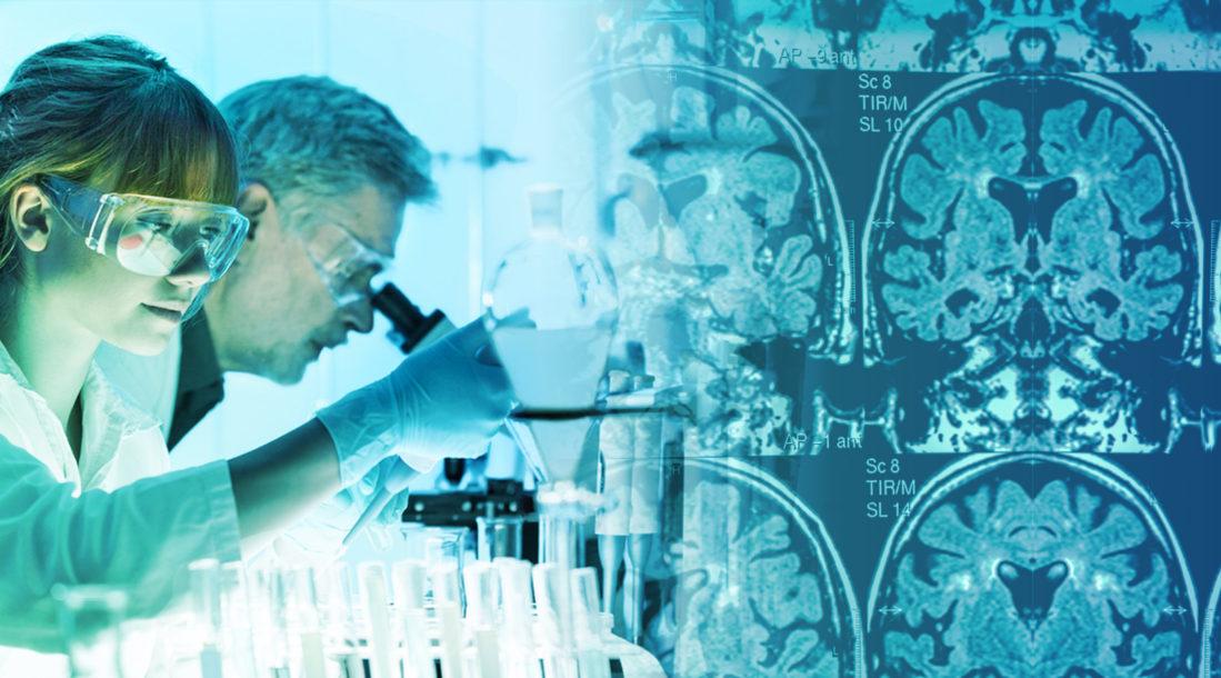 Alternative Treatments for Alzheimers
