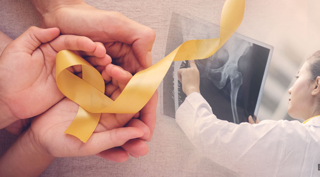 osteosarcoma treatment, hands holding a yellow ribbon with a doctor pointing at an xray result