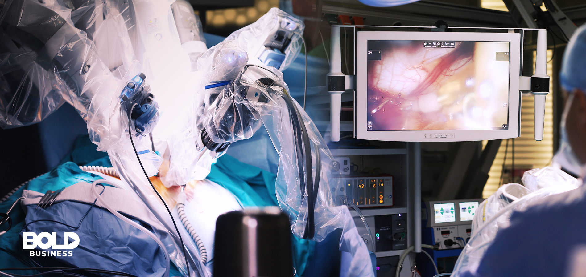 a photo showing a human body being operated on using robotic arms beside a surgeon looking at a screen, thus giving us a picture of what the recent robotic heart surgery looked like