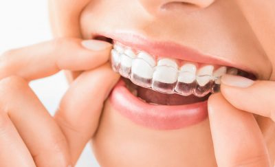 Orthodontics,-Artificial-Intelligence-and-3D-Printing-Featured-III