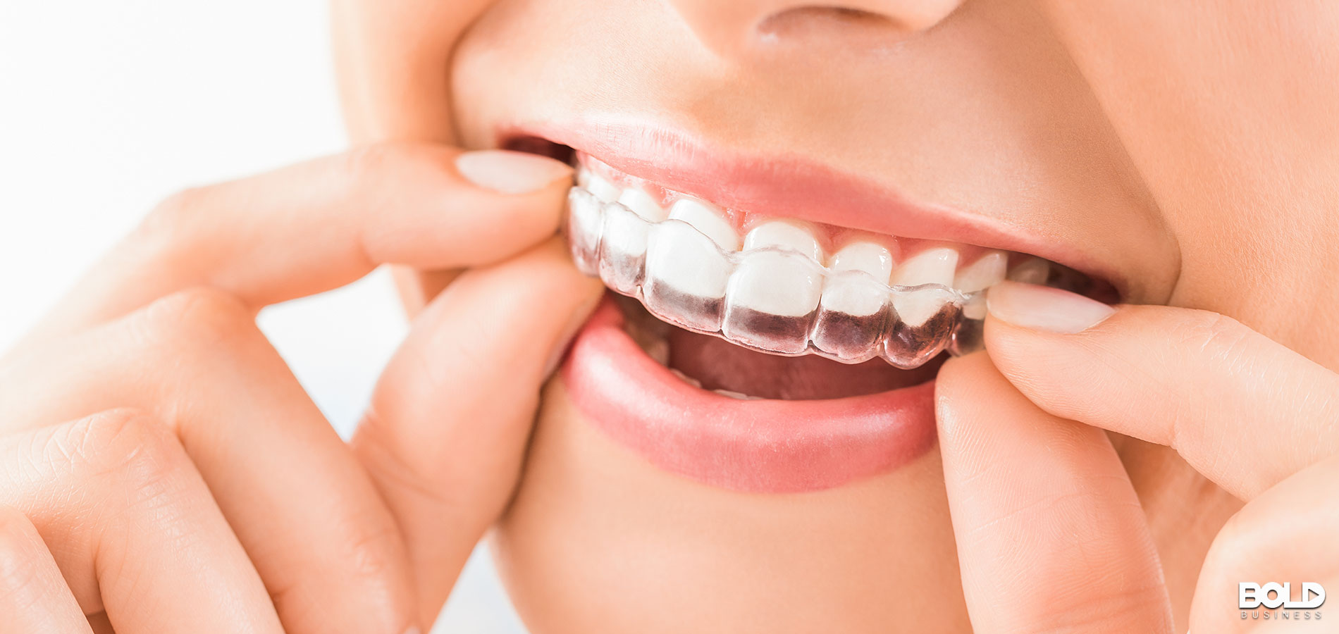 Some woman putting an Invisalign on her teeth